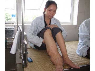 Mổ chân voi cho cô gái nạn nhân da cam