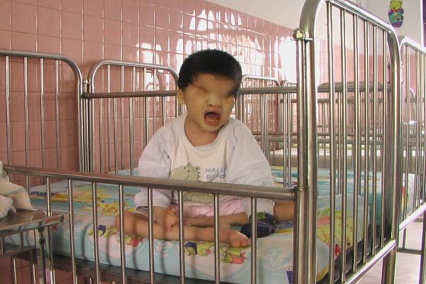 Tác hại của dioxin chứa trong chất độc da cam đã rải trên môi trường và con người ở Việt Nam trong chiến tranh